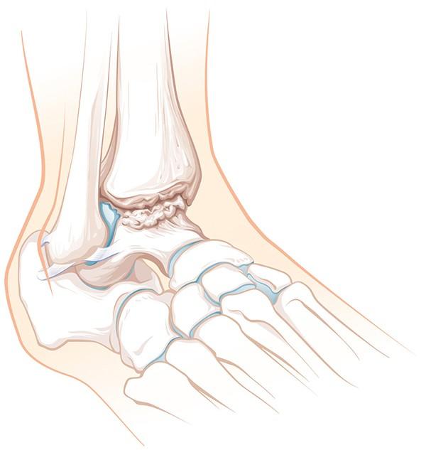 Knochenmarködem - Medizinische Experten