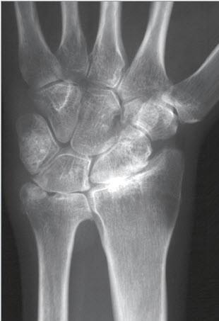 Handwurzelarthrose – STT-Arthrose