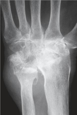 Schmerzhafte Arthritis: Formen, Symptome und Behandlung