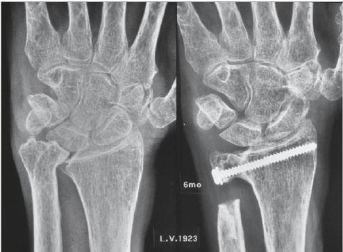 Beim beugen des beines schmerzen im hüfte, strapazierte muskeln sind...