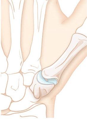 Rhizarthrose: Schmerzen im Daumengelenk