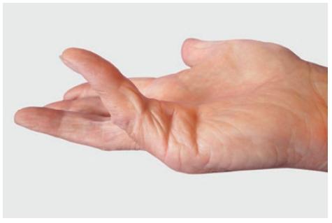 knoten handfläche
