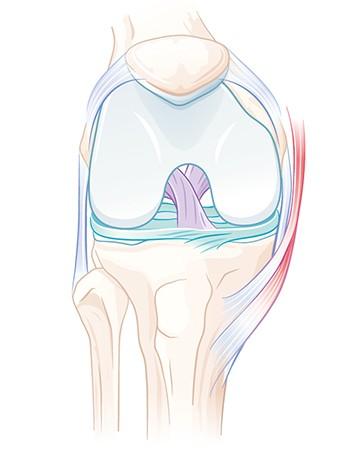 Knorpeltransplantation und andere Knorpelverfahren am Kniegelenk