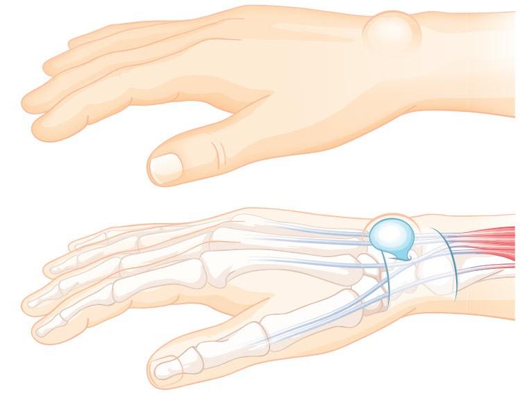 Schmerzen in Daumen und Handgelenk