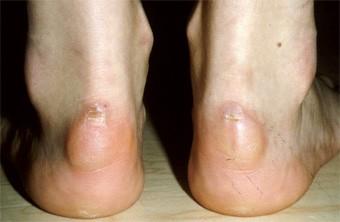 Entzündete Achillessehne? Einfache Übung hilft!